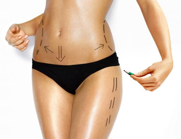 ¿Qué es una lipoescultura sin cirugía?